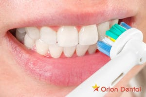 Orion Dental - features to consider when buying an electric toothbrush