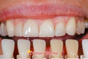 Orion Dental - why choose veneers