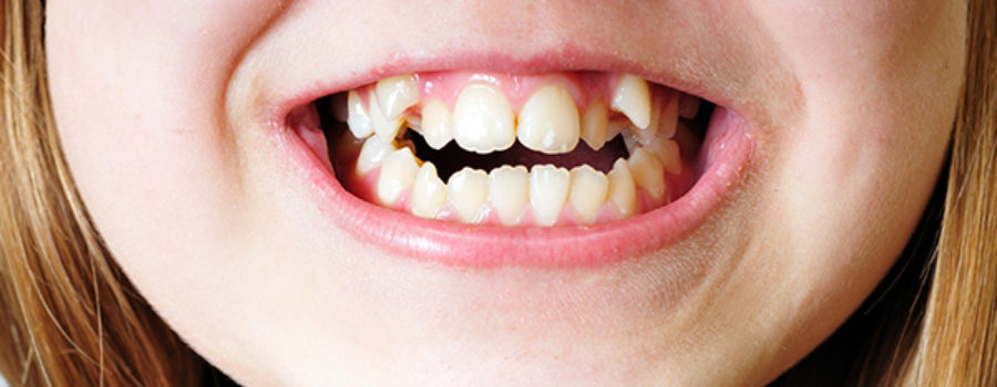 Orion Dental - Common Types of Bite Problems Explained