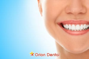 Understanding Different Types of Teeth Whitening Treatments