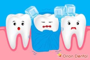 Orion Dental offers tretamnets for sensitive teeth