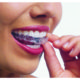 Invisalign Versus Traditional Orthodontic appliance