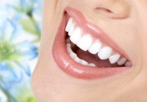 Teeth Whitening Milton | Teeth whitening Scarborough