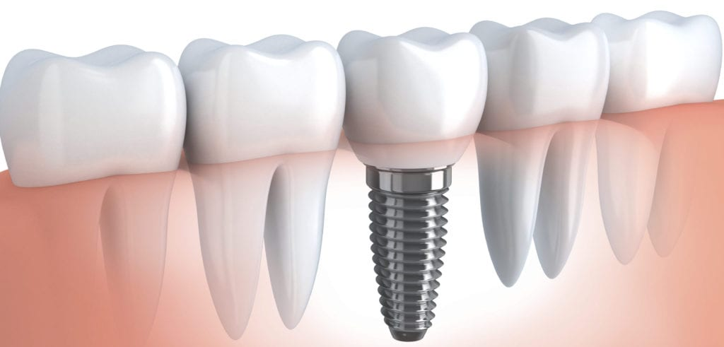 Dentist Dental implants Milton | Dentist Dental implants Scarborough