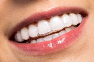Invisalign Dentist Milton | Invisalign Dentist Scarborough