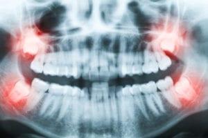 Wisdom teeth extraction Milton | Wisdom teeth extraction Scarborough