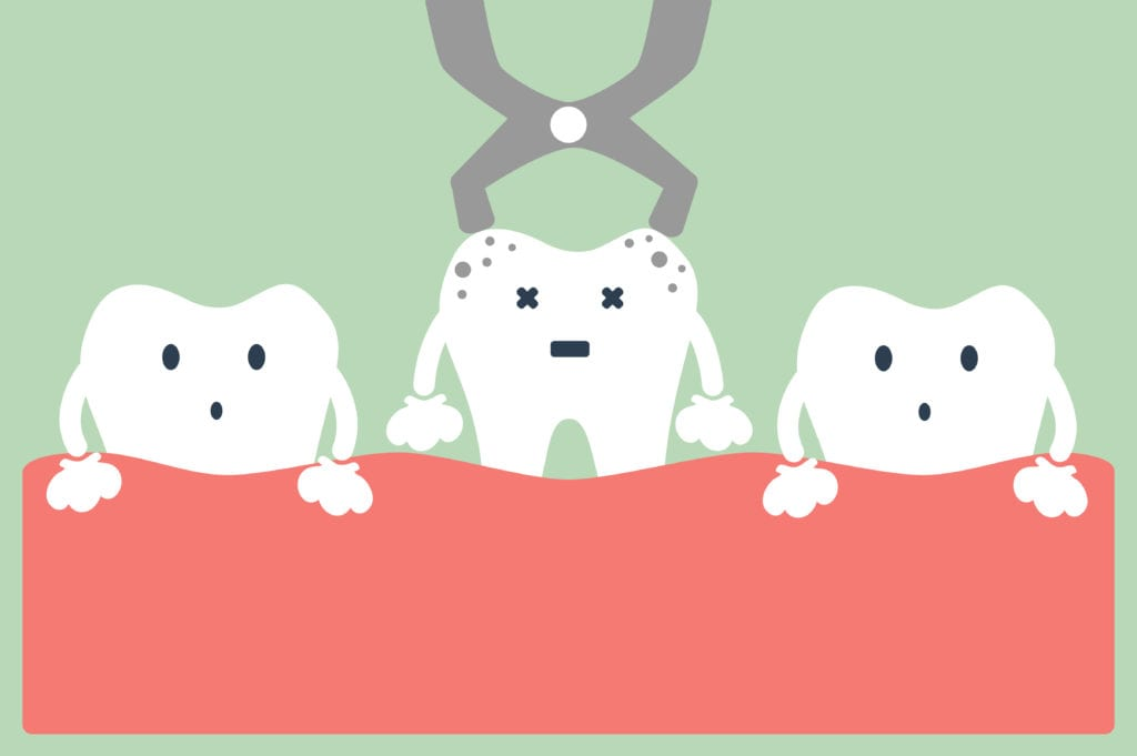 Tooth extraction | Orion Dental