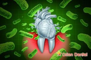 Periodontitis-Gum-Disease