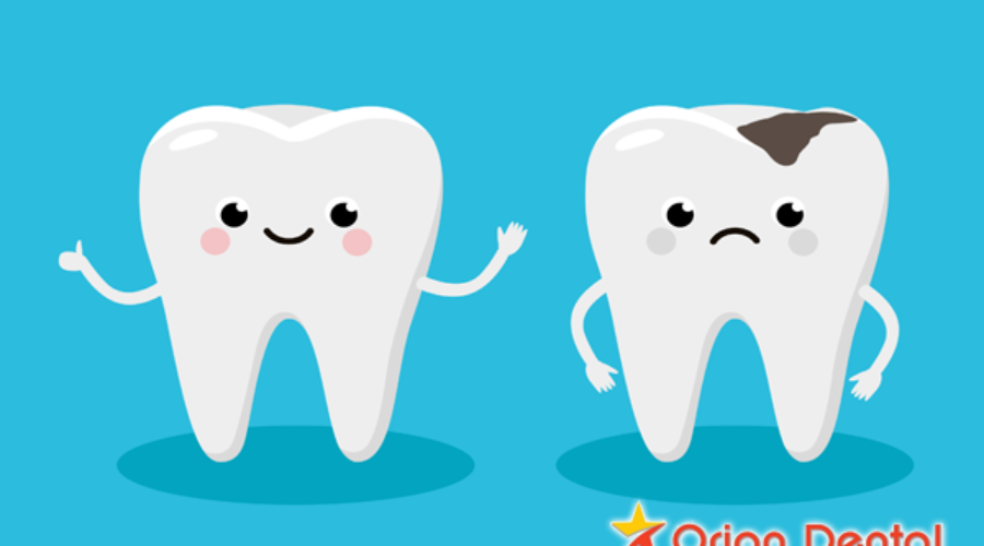 Orion Dental :: Cartoon image of tooth decay