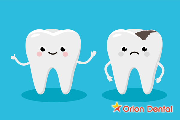Orion Dental :: Cartoon image of tooth decay and cavities