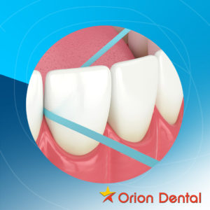 Flossing Your Teeth - Orion Dental