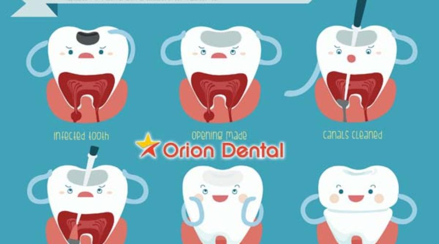 Orion :: Root Canal