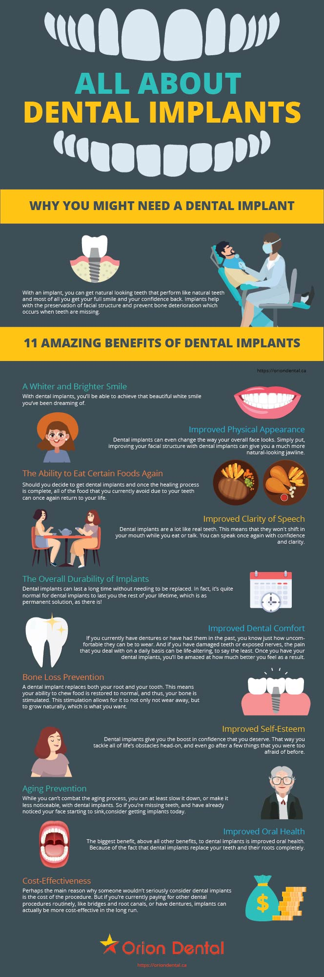 Dental Implants Infographic | Orion Dental