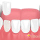 Composite vs Porcelain Veneers
