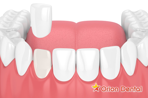 Tooth Veneer